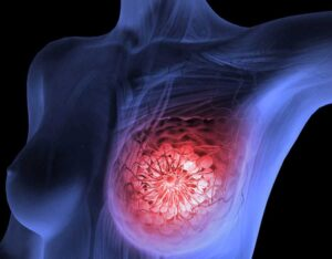 Breast Cancer: Causes