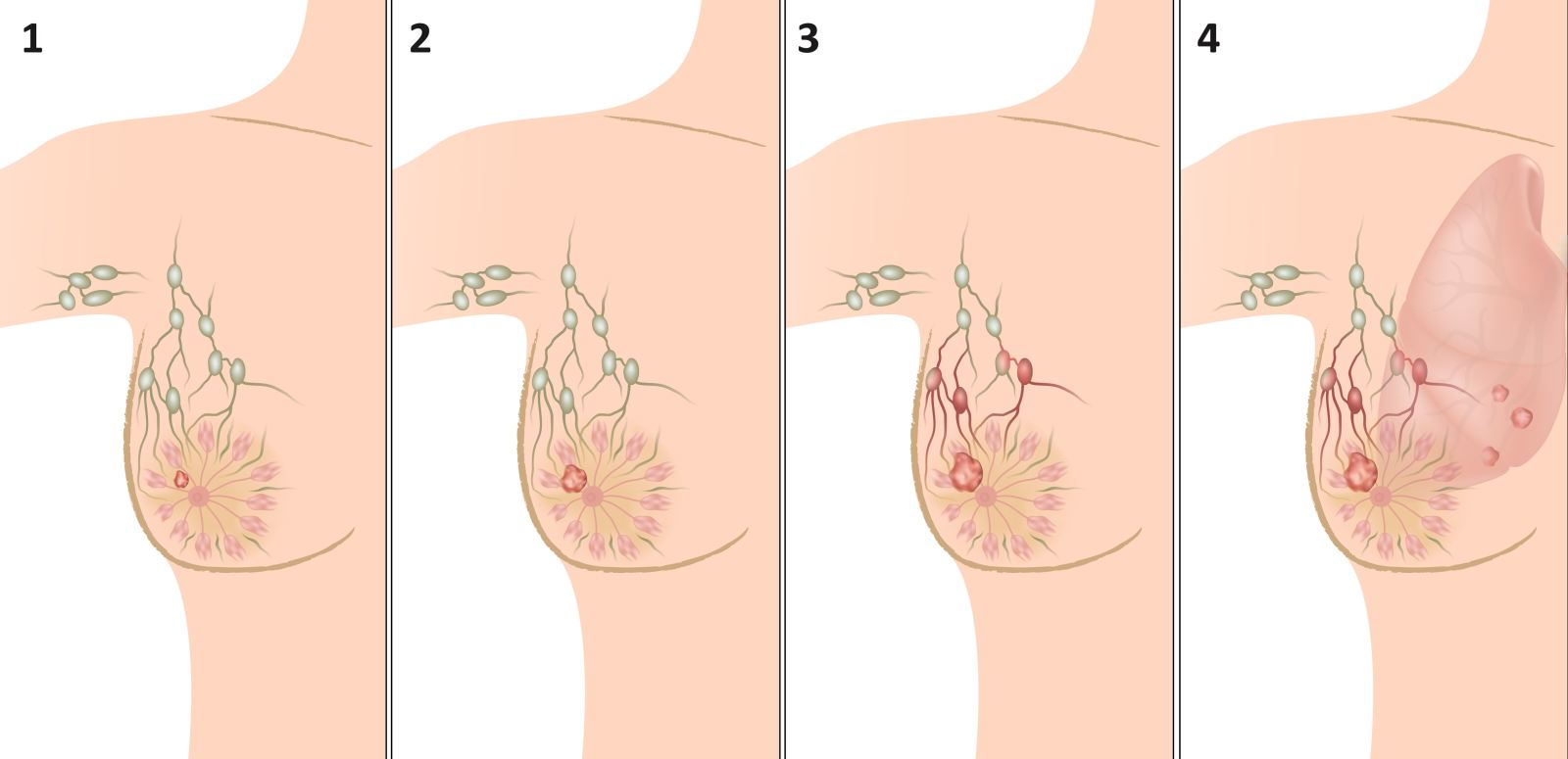 Breast Cancer: Treatment